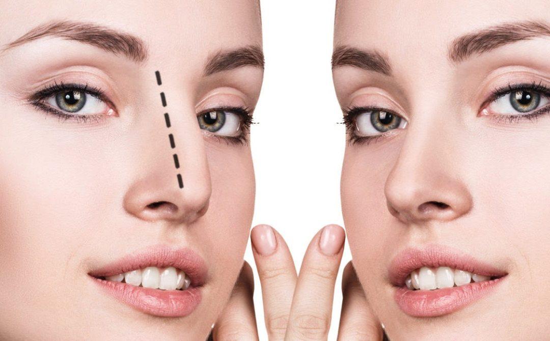 Rinoplastia: a cirurgia para a correção ou ajuste do nariz