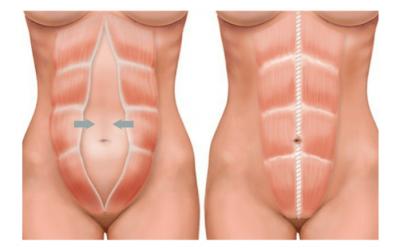Diástase: 3 variações de tratamentos